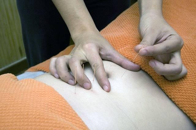 tratamientos fisioterapia punción seca